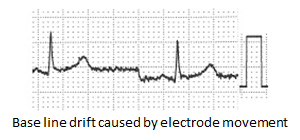 base line drift caused by electrode movement
